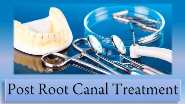 Post Root Canal Treatment Post Root Canal Treatment