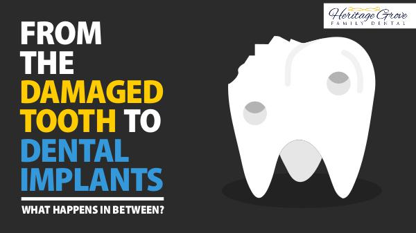 From The Damaged Tooth To Dental Implants: What Happens In Between? Dental Implants