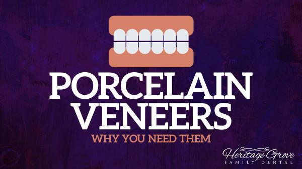 Porcelain Veneers Plainfield il Porcelain Veneers - Why You Need Them