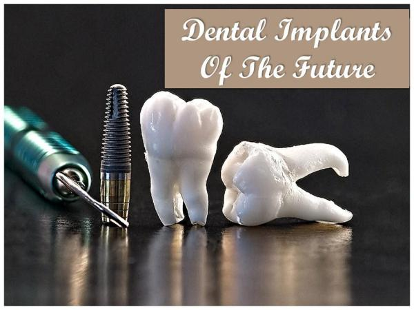 Dental Implants Of The Future Dental Implants Of The Future