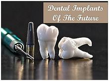 Dental Implants Of The Future