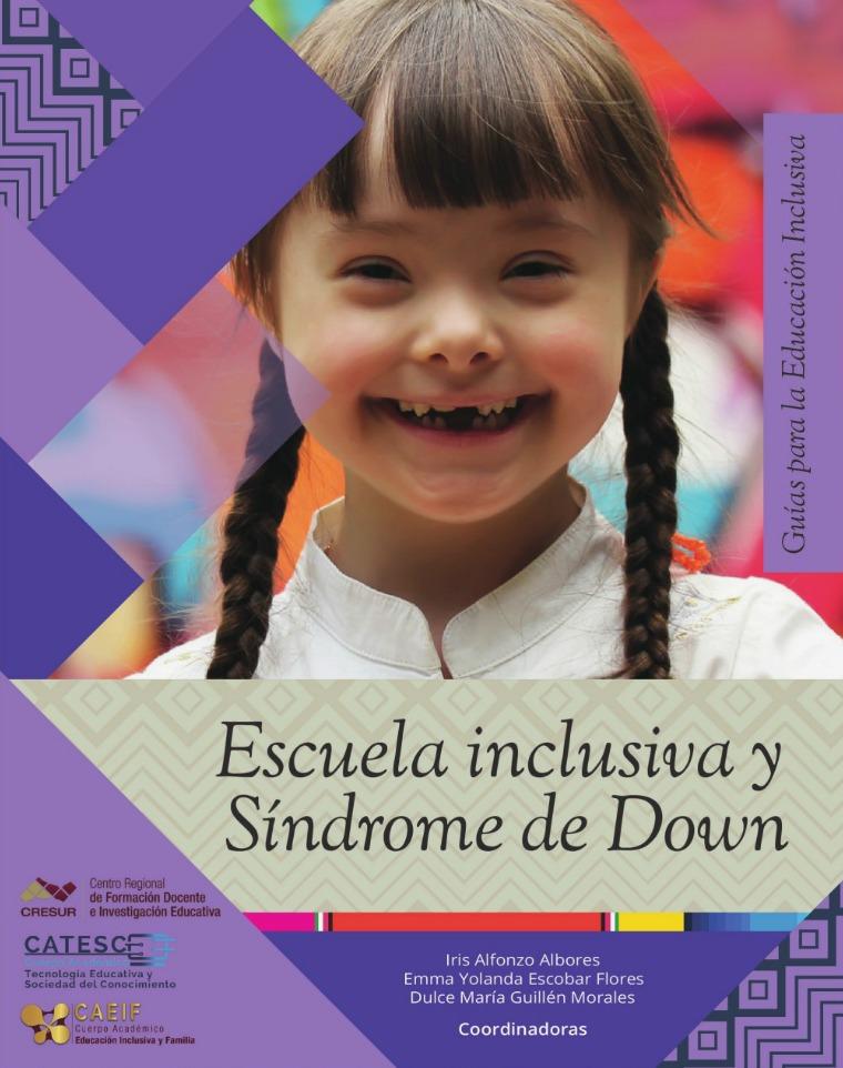 Síndrome de Down sindrome_down