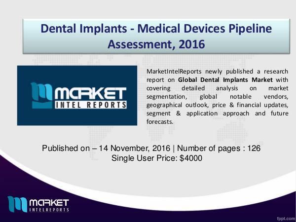 Global Dental Implants Market Analysis, 2016 – 2021 1