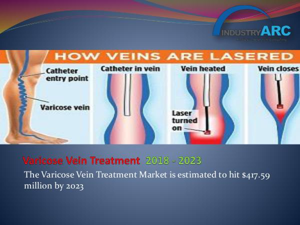 Analytics, Research & Consulting Varicose Vein Treatment Market