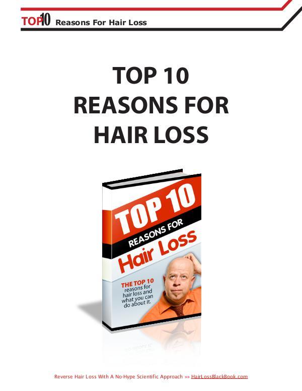 Hair Loss Black Book Nigel Thomas review Hair Loss Black Book Nigel Thomas