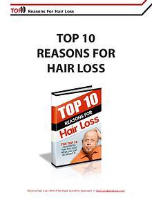 Hair Loss Black Book Nigel Thomas review
