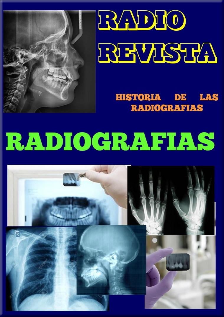 Radiografias, Fscultad de Odontologia Radiografias y  radiografias dentales