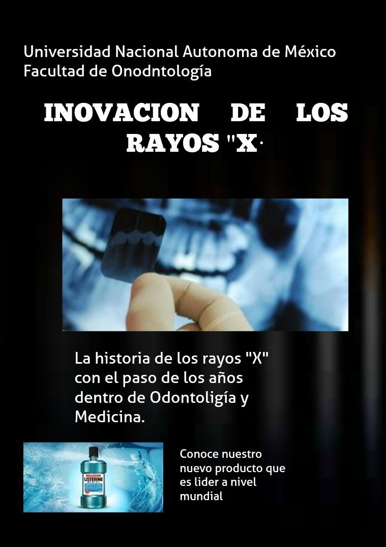 RADIOLOGIA Evolución de los Rayos X, aplicacion en odontologi
